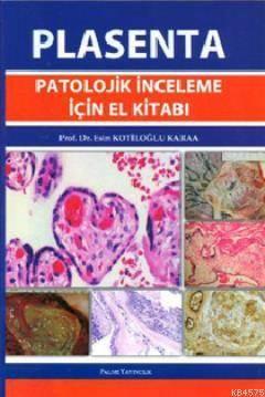 Plasenta Patolojik İnceleme İçin El Kitabı