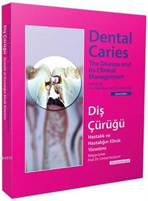 Diş Çürüğü; Dental Caries
