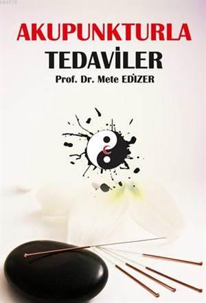 Akupunkturla Tedaviler