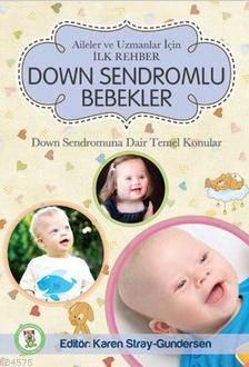 Down Sendromlu Beb ...