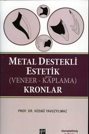 Metal Destekli Estetik (Veneer - Kaplama) Kronlar